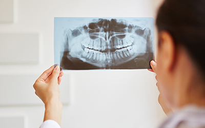 Dentist holding dental x-ray