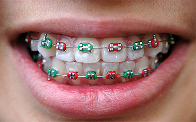 A mouth with braces on it