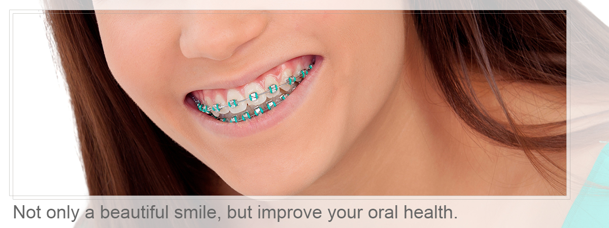 Close-up of braces, Not only a beautiful smile, but improve your oral health.